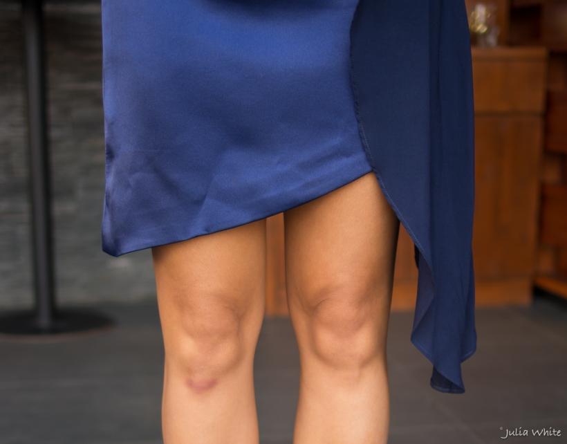 legs laura.jpg